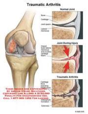 Pengobatan Alami Untuk Osteoarthritis Yang Paling Ampuh